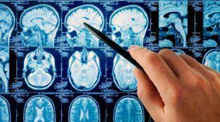 Ретроцеребеллярная киста головного мозга: причины, диагностика