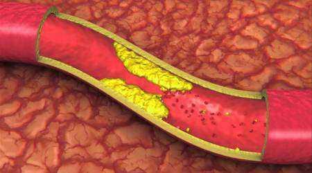 Сужение сосудов головного мозга: причины и последствия при несвоевременном лечении