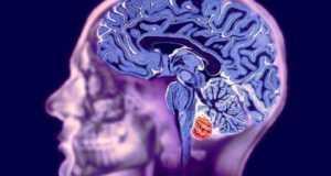 Магнитно-резонансная томография мозга: показания, противопоказания