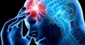 Правосторонний ишемический инсульт: причины, последствия