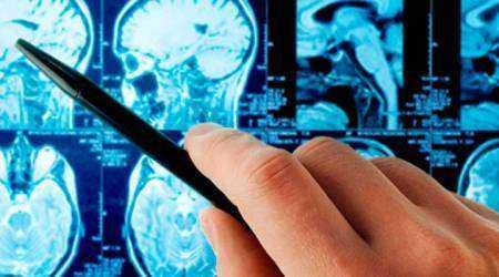 Виды инсультов головного мозга: признаки, диагностика, причины
