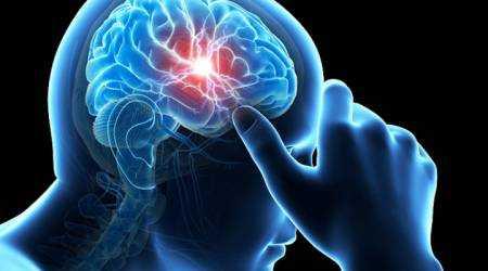 Транзиторная ишемическая атака: симптомы, причины, лечение