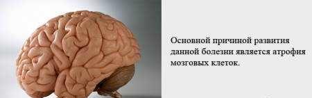 Болезнь Альцгеймера причины, симптомы, лечение