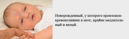 Кровоизлияние в мозг у новорожденных: причины, последствия