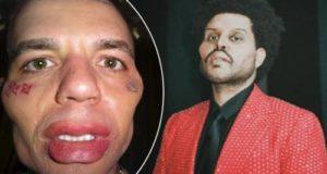Поклонники раскритиковали Элджея за копирование образа The Weeknd в новом клипе